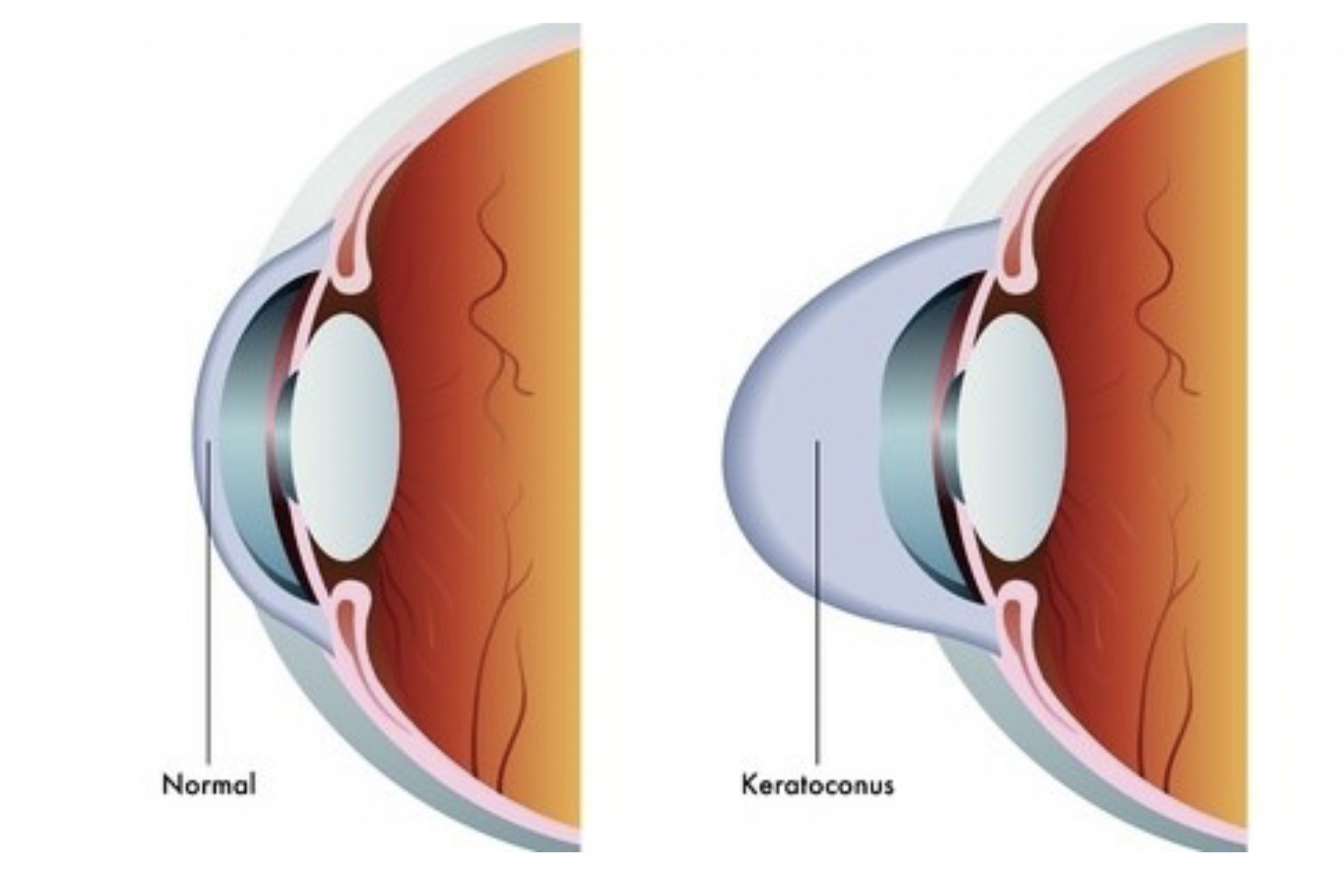 <h1>Keratoconus</h1>